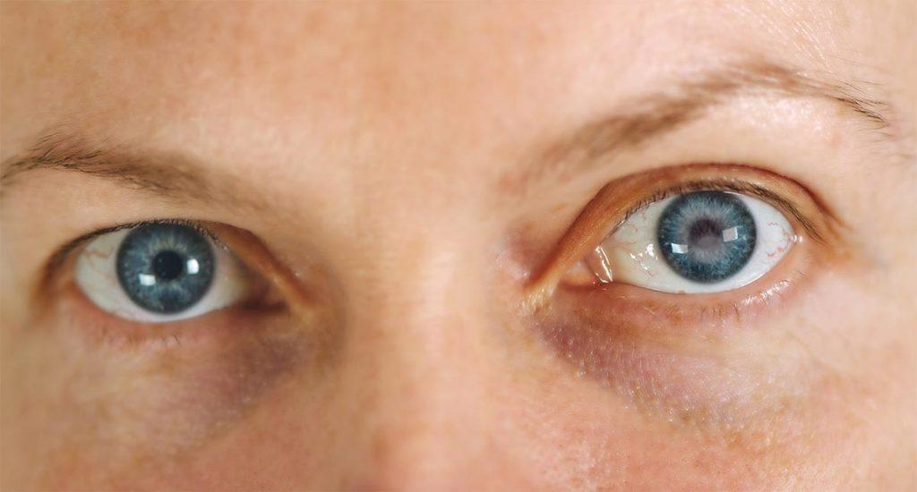 Cataratas en los ojos: qué son y cómo se producen