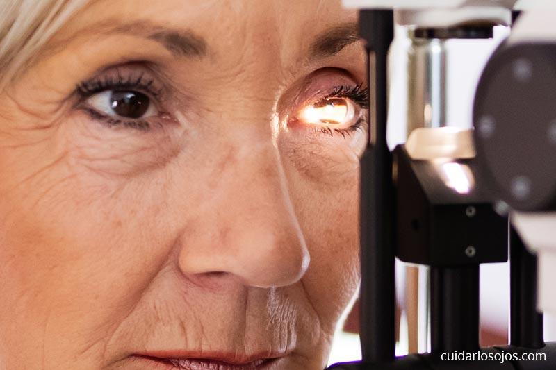 Degeneración Macular relacionada con la edad (DRME)