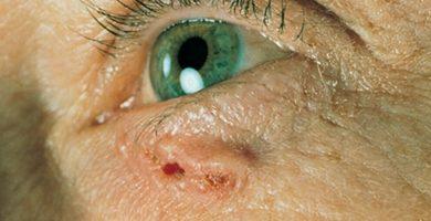 cancer de parpados