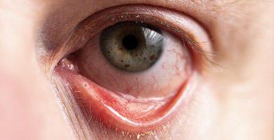 conjuntivitis-cuidar-los-ojos