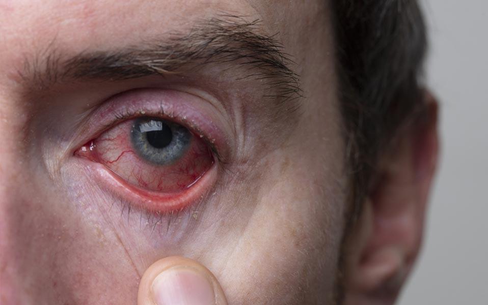 enfermedades-de-los-parpados