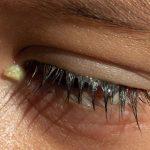 laganas-en-los-ojos