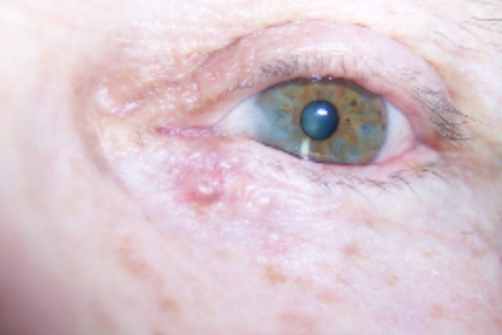 prevencion-de-los-tumores-de-parpado