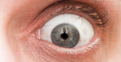 exoftalmia-ojos-saltones