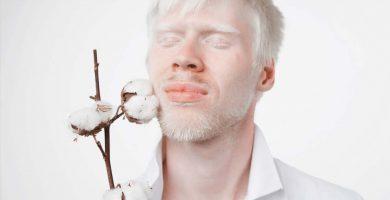 problemas-oculares-de-las-personas-albinas
