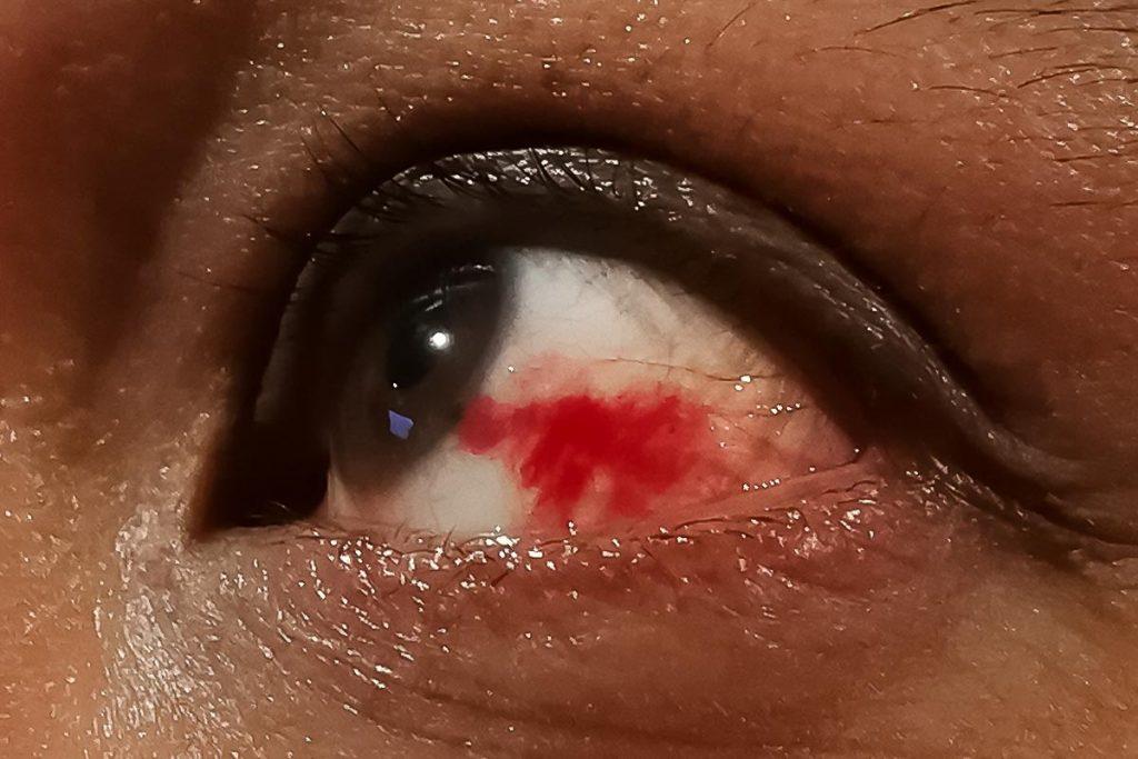 cancer-de-ojos