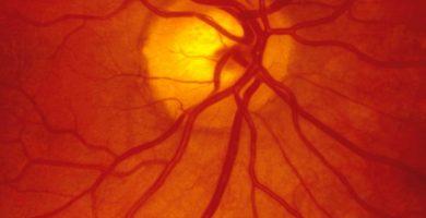por-que-se-desprende-la-retina
