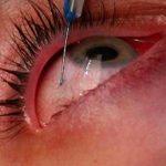 tatuajes-en-el ojo