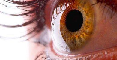 trastornos-en-la-cornea