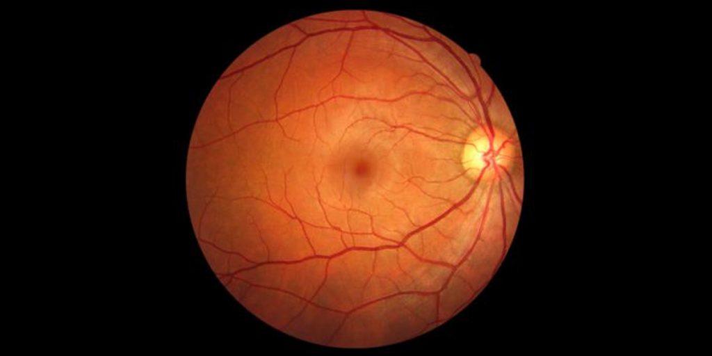 Problemas dr la retina FOTO: www.associatedeyecare.com