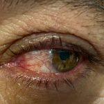 pterigión Galería enfermedades de los ojos