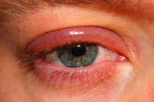 que-es-la-blefaritis
