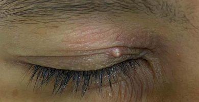 ojo-con-molusco-contagioso_2