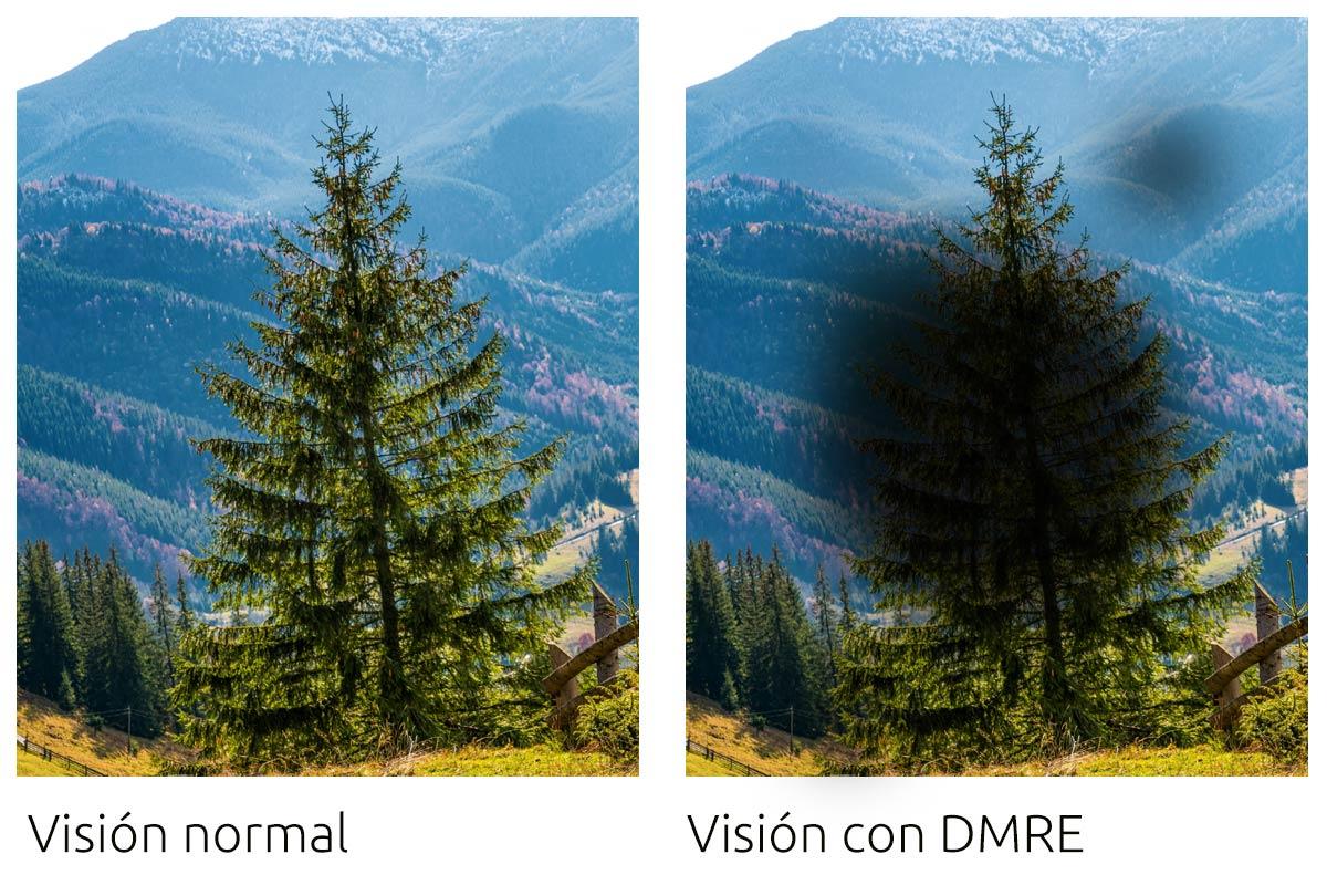 Visión normal y la misma imagen vista con Degeneración Macular Relacionada con la Edad (DMRE)